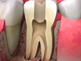 root-canal_2